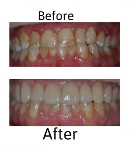 no prep veneers in Southlake