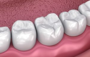 Model of tooth-colored filling from holistic dentist in Southlake.