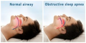 Model of obstructive sleep apnea in Southlake.