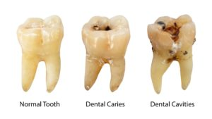 Holistic dentist in Southlake shows stages of tooth decay.